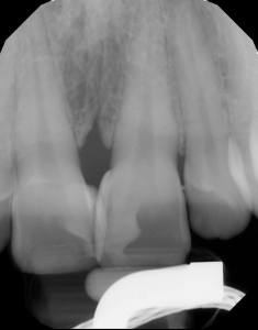 8. Post-operative radiograph. Note the resultant contours from the matrices, as well as the palatal volume at #8 due to the unusual positioning of the teeth.