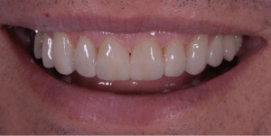 Direct composite bonding used to restore and create natural and functional smile.