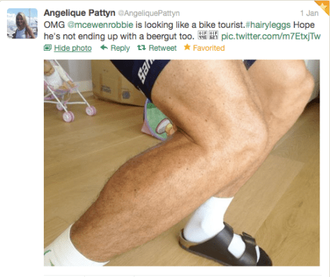 Robbie hairy legs