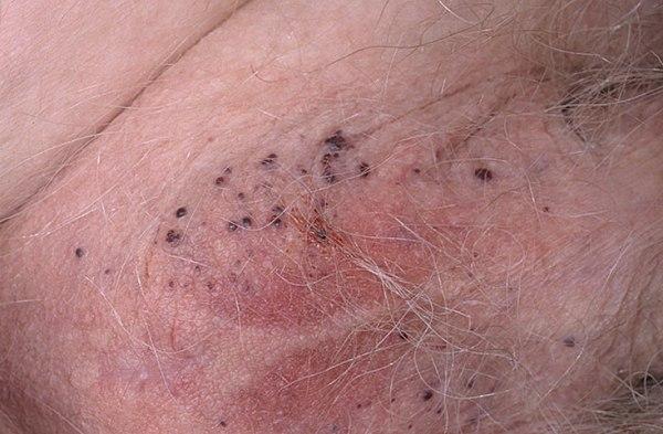 Черные точки на половых губах, фото, причины и лечение