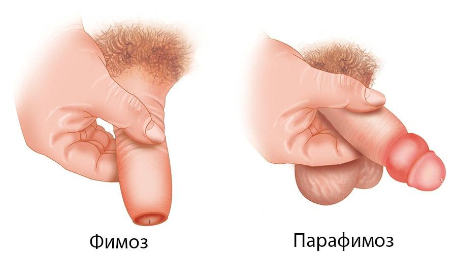 Фимоз комаровский лечение
