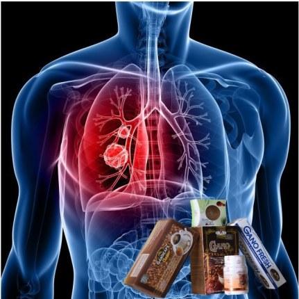 Ganoderma lucidum para el tratamiento del cáncer