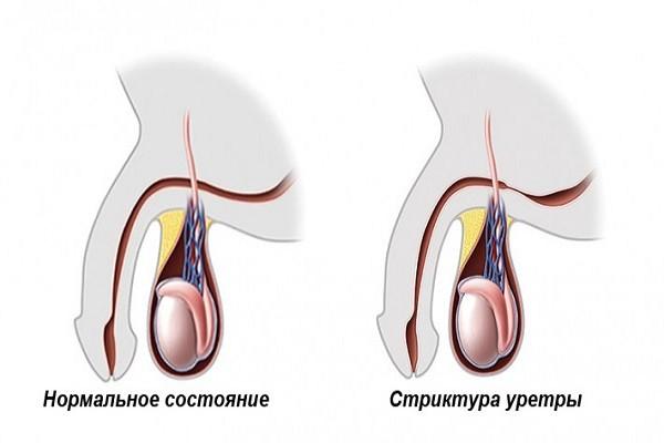Gymok terem és prosztatitis A prostatitis- leeches kezelése
