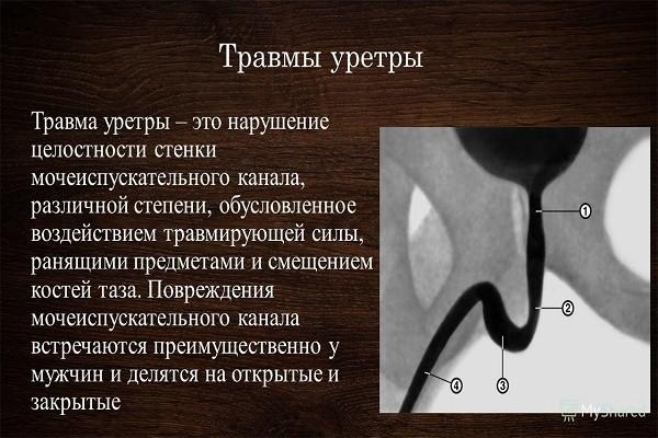 Akut prosztata gyulladás típusok osztályozása