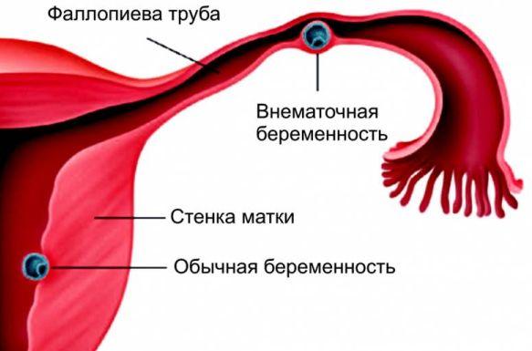 cause di secrezione rosa e dolore pelvico
