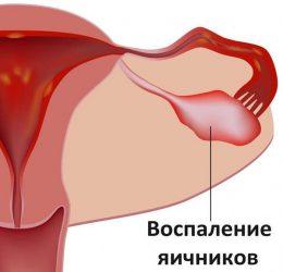 Свечи от кисты в гинекологии