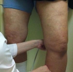 下肢静脈瘤の超音波検査