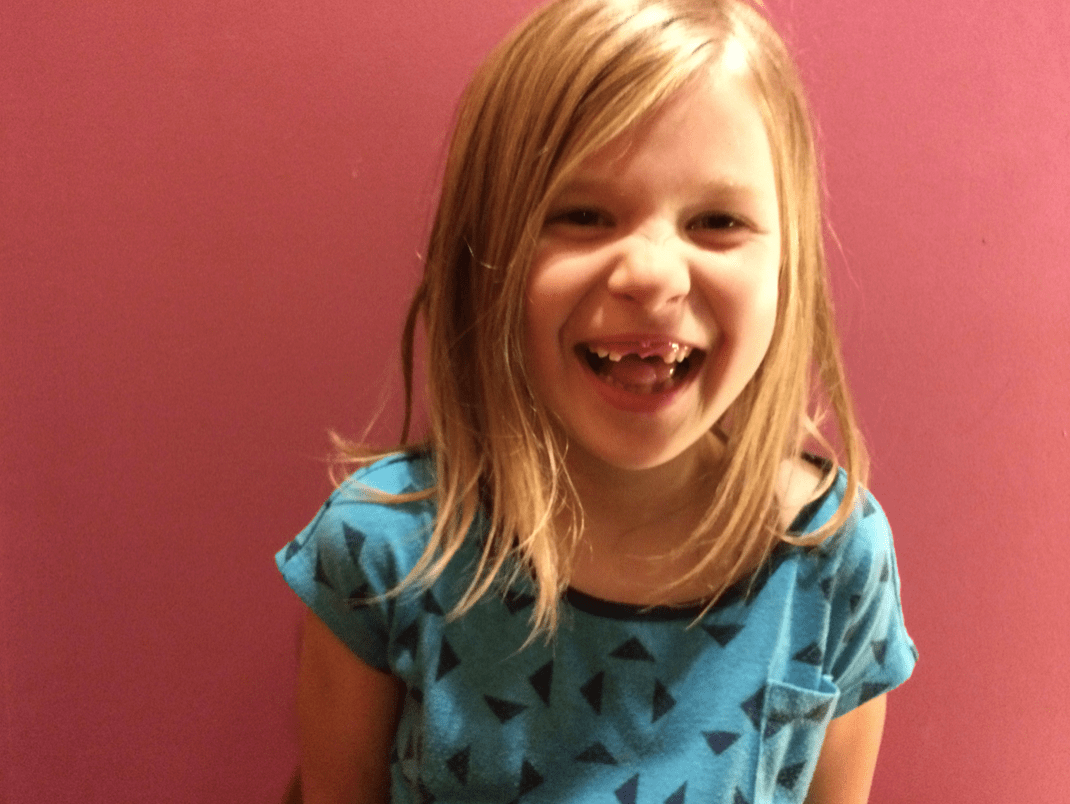Girl smiling with front teeth missing