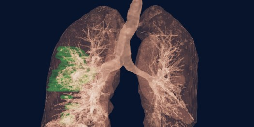 Nvidia's Clara AI for COVID-19 diagnosis from CT scans