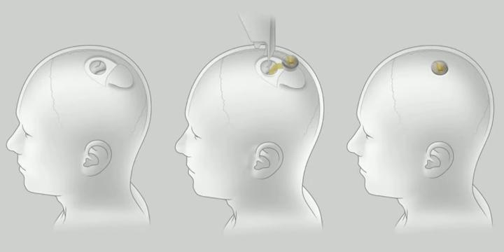 Neuralink surgery procedure