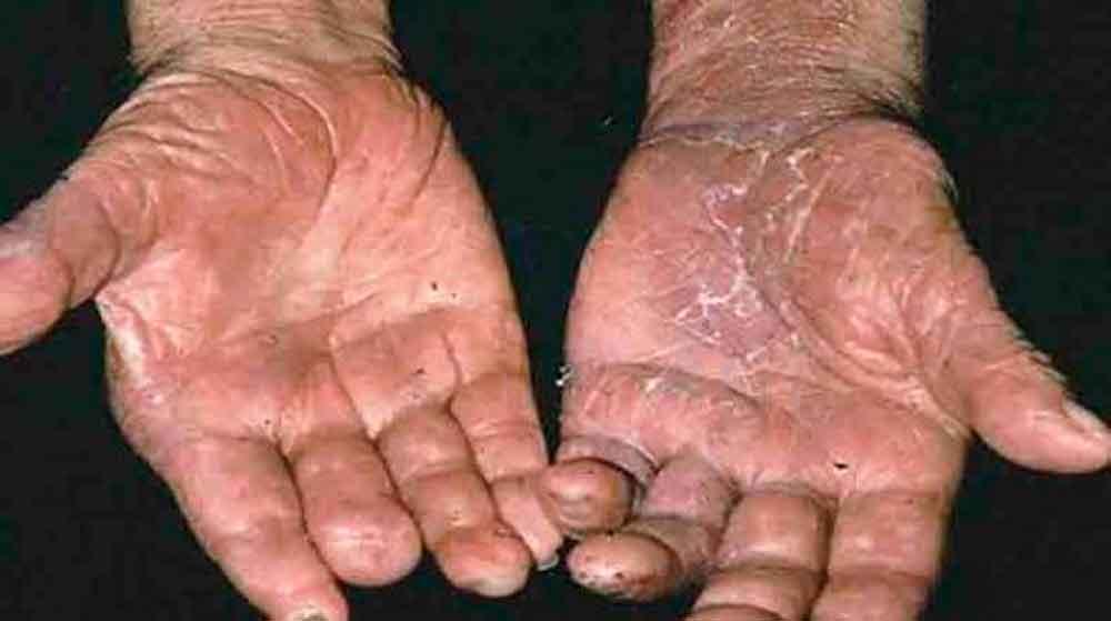 Resultado de imagen de que es la lepra