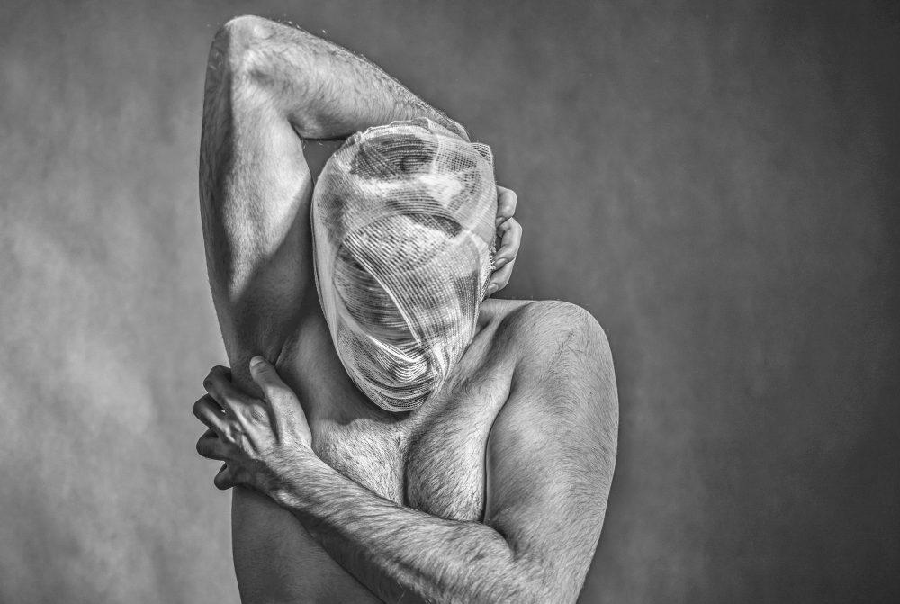 Migraine (Stuart Barnes)