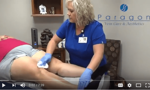 Paragon Vein Care – Cosmetic Spider Vein Procedure