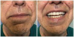 Front-facing images of patient after treatment