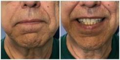 Front-facing images of patient before treatment