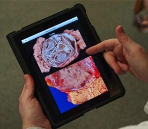 The Johns Hopkins Atlas of Pancreatic Surgery