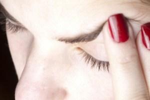 headache migraine vestibular