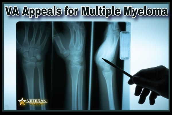 VA Appeals for Multiple Myeloma