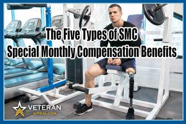 The Five Types of SMC