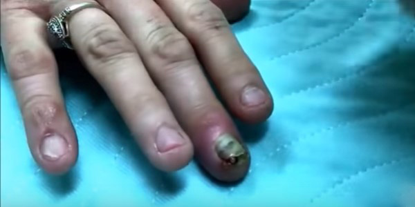 Нарывает палец на руке что делать – Нарыв на пальце возле ...