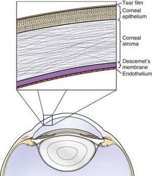 Corneal Ulcers | Veterian Key