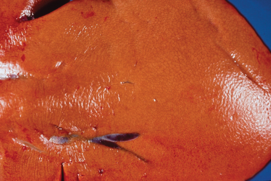 Photo showing Yellow fatty change in an enlarged ruminant liver.