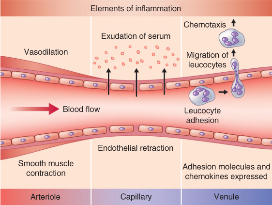 Illustration depicting Major actions of the exudative phase of acute inflammation.