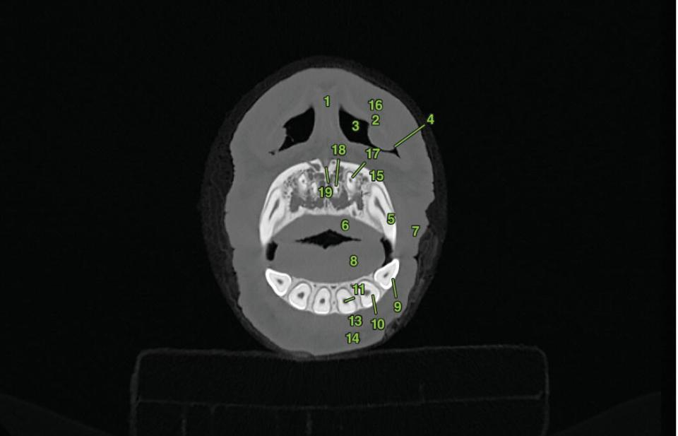 Three radiographs of transverse section 1 displaying the oral and dental structures of a horse marked 1–4.