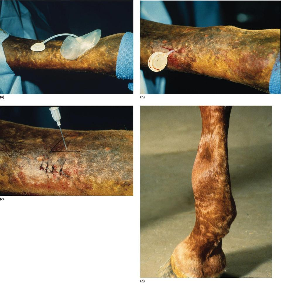 Photos of (a) silicone bag placed on a limb, (b) tissue expander inserted in the subcutaneous tissue, (c) sterile saline solution injected into the injection dome, and (d) lateral surface of swollen metacarpus.
