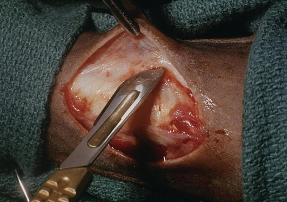 Photo displaying the extremity of a horse with skin being undermined using scalpel.