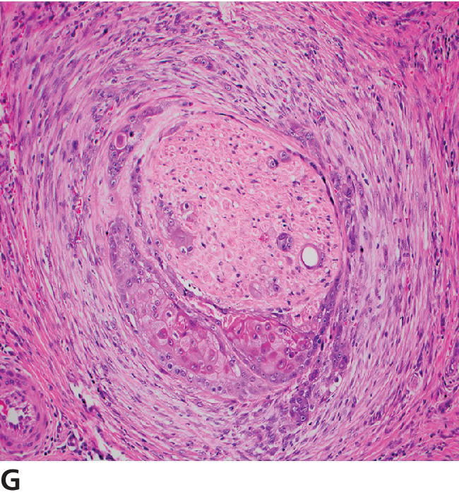 Micrograph displaying invasive SCC with desmoplasia and focal neural invasion.