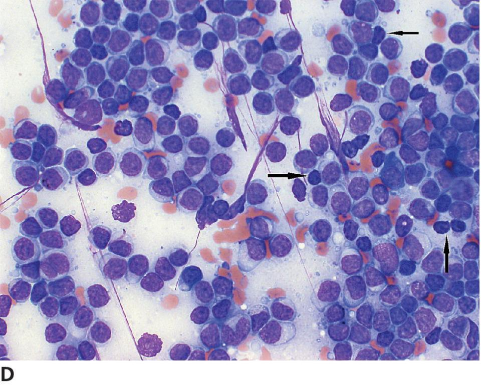 Micrograph of MZL displaying uniform population of immature lymphoid cells with rare mature, non-neoplastic lymphocytes (pointed by arrows), abundant cytoplasm, and with amphophilic strands.