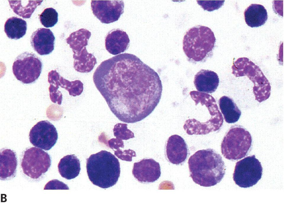 Micrograph of Sézary syndrome on a horse's buffy coat. Cell in the center is typical of large cells in the marrow, blood, and pericardial effusion. The nucleus has a chromatin pattern and two large nucleoli.
