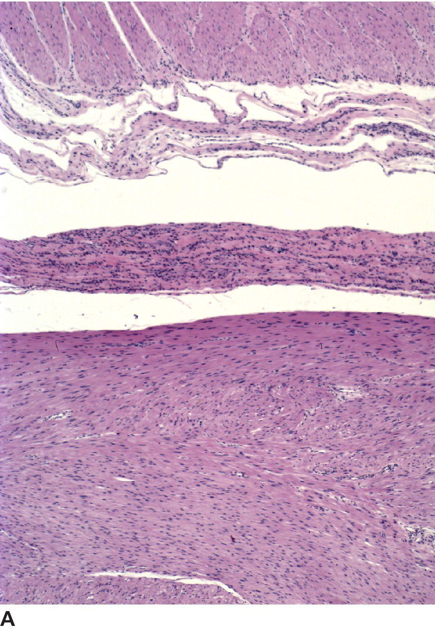 Micrograph of gastric leiomyoma in dog illustrating a demarcation between the tumor at the bottom of the figure and the normal gastric smooth muscle at the top.