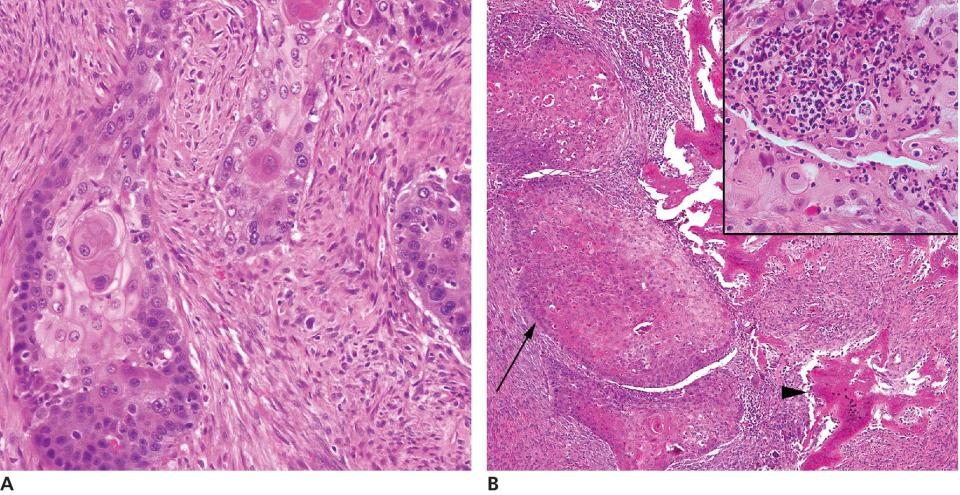 2 Micrographs (a,b) of squamous cell carcinoma of cat's mouth illustrating trabeculae and nests of neoplastic cells and residual spicules of invaded bone (arrowhead). Inset: Neutrophilic emperipolesis.