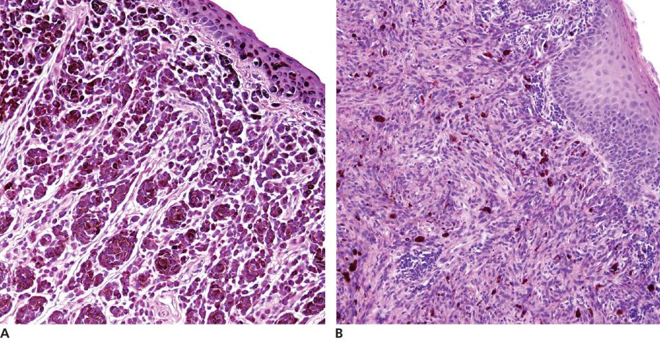 2 Micrographs of malignant melanoma in a dog's mouth featuring epithelioid type melanoma with polyhedral cells, borders, and nuclei (a) and spindloid type melanoma with spindle‐shaped cells (b).