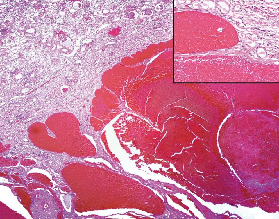Micrograph of telangiectasia in a Welsh corgi dog with an inset of the single layer of well‐differentiated endothelium lining telangiectatic vessels.