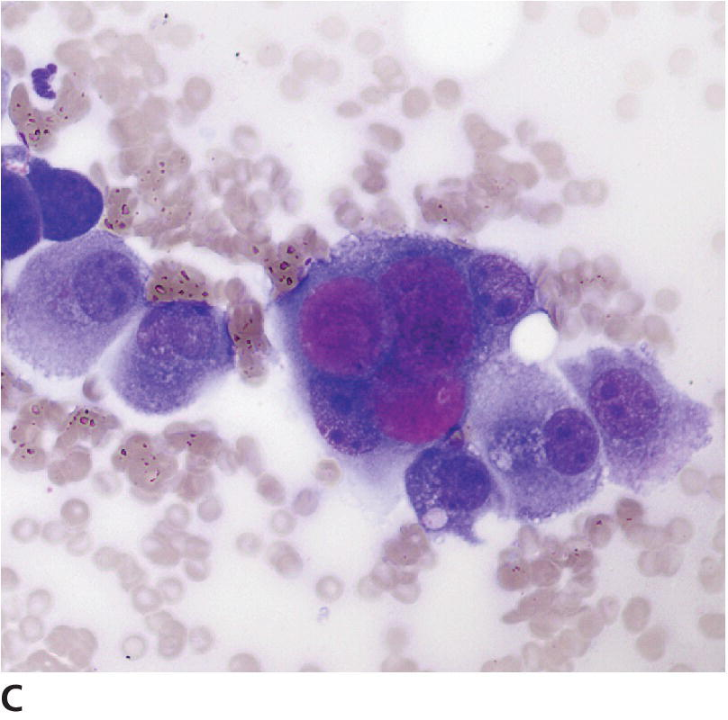 Micrograph displaying large, densely stained Melamed–Wolinska bodies in a multinucleated UC cell, with nuclei containing variable numbers and sizes of nucleoli.