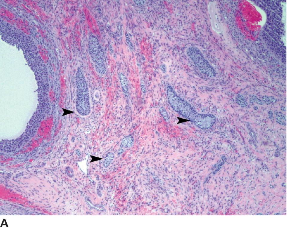 Micrograph of epithelial tumor of the ovary displaying granulosa cell cords pointed by arrows located between two follicles in the corticomedullary junction.