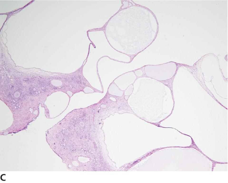 Micrograph of epithelial tumor of the ovary displaying cysts of SES.