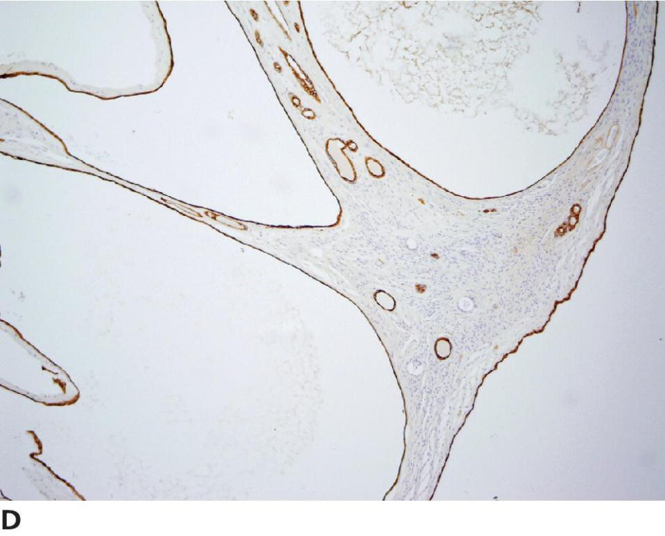 Micrograph of epithelial tumor of ovary displaying cytokeratin IHC labeling of SES cysts denoting strong positive labeling of cells lining large cysts and smaller structures, with normal SES (near the surface).