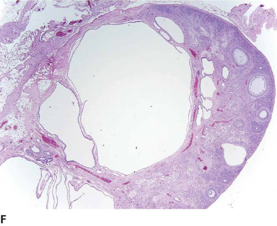 Micrograph of cystic rete ovarii displaying scant remnant of germinal structures.