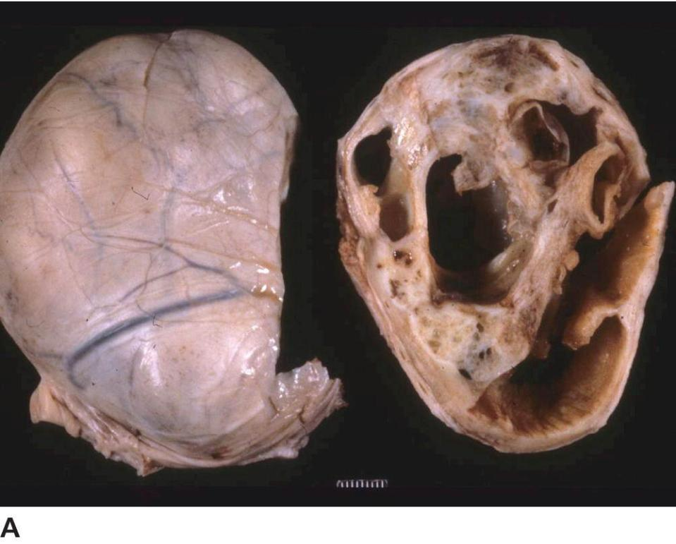 Photo of the granulosa cell tumor in horse's ovary featuring large cavernous cysts.