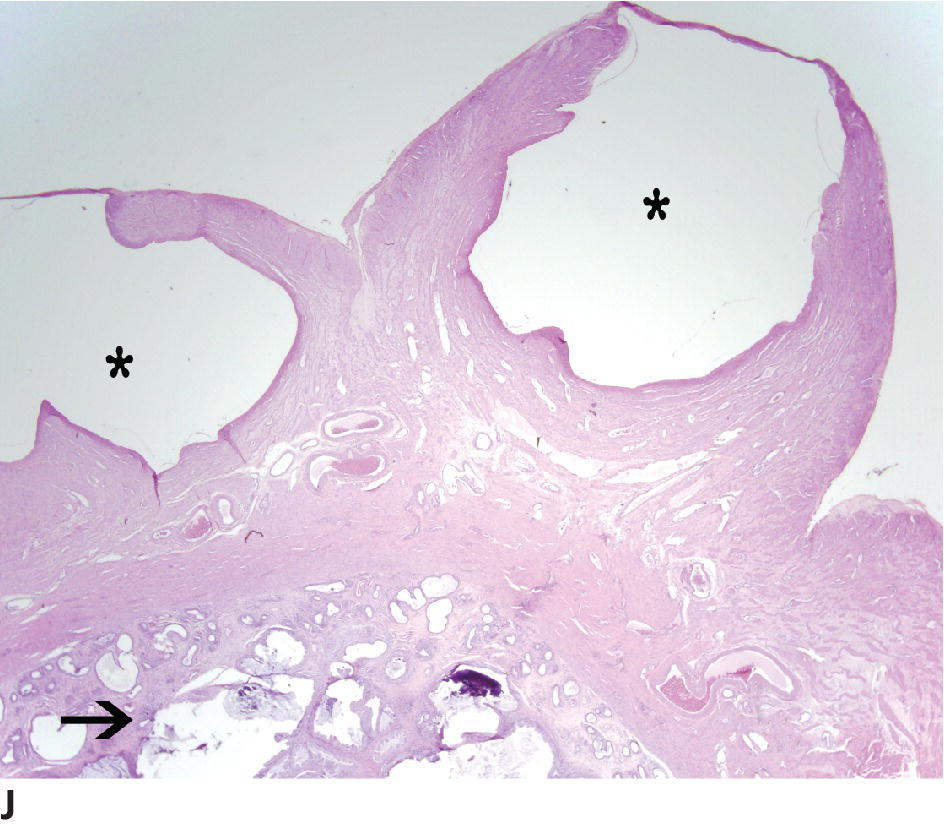 Micrograph of tumors of the uterus and vagina illustrating remnants of mesonephric (Wolffian) duct becoming cystic with the serosal surface grossly (asterisk) and cystic endometrial hyperplasia (arrow).