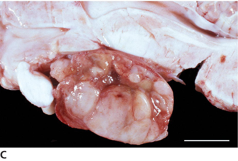 Photo displaying a pituitary gland of a horse with a multinodular PI adenoma compressing the pars distalis and nervosa and the overlying hypothalamus.