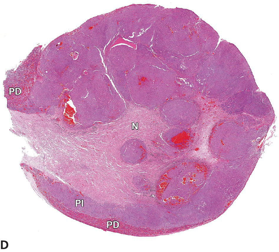 Micrograph of a multinodular PI adenoma with multifocal hemorrhage, compression of the pars distalis (PD), and compression and infiltration of the pars nervosa (N).