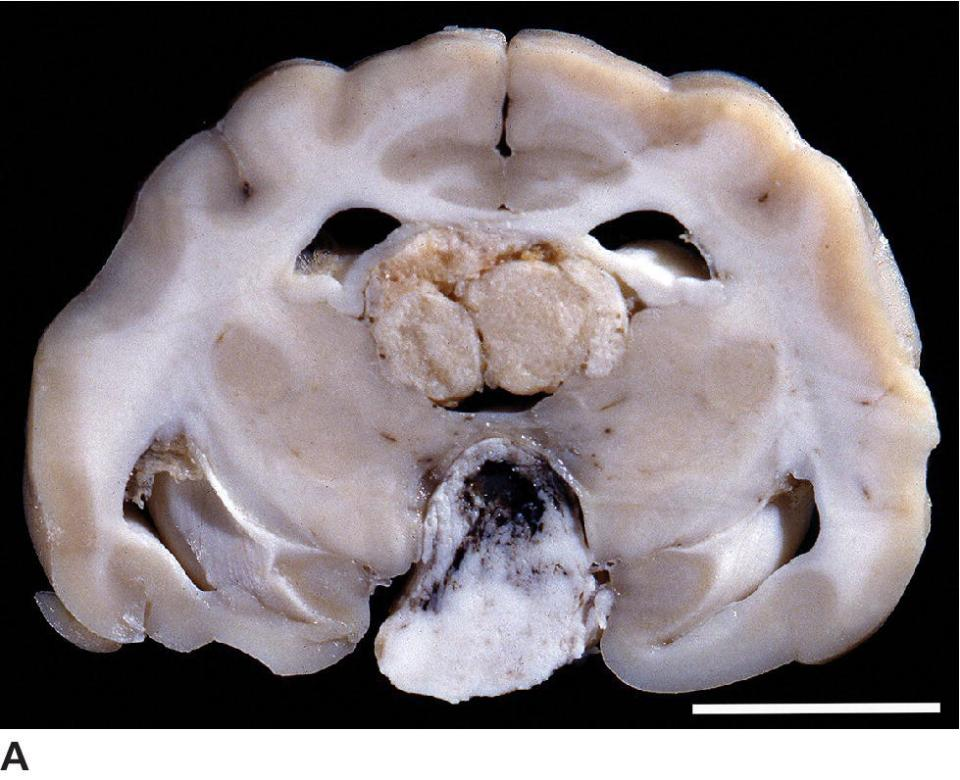 Photo displaying coronal view of the brain with acidophil adenoma associated with acromegaly in cat, with dark regions depicting secondary hemorrhage and necrosis.