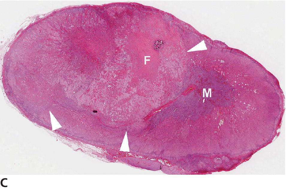 Micrograph displaying adenoma (depicted by arrowheads) from a dog with compression of the cortex, medulla, and central fibrosis (F). Incidental focus of mineralization is above the central fibrosis (F).