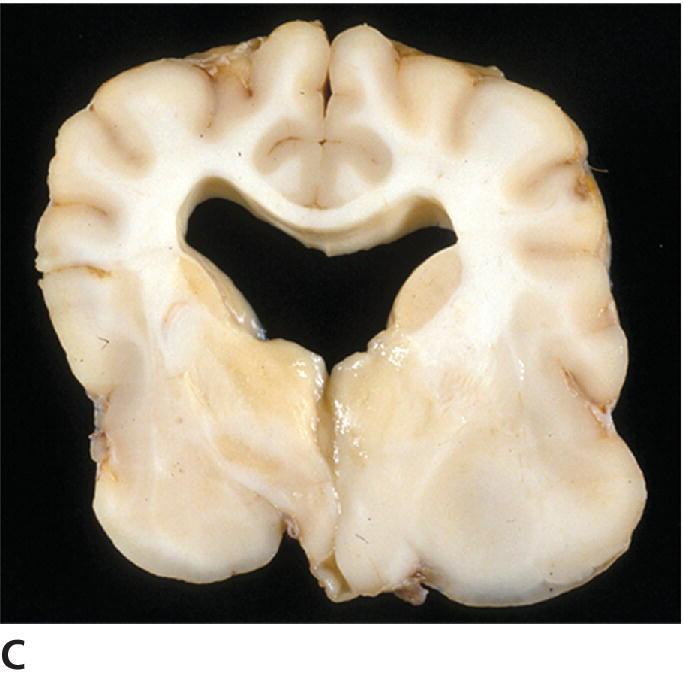 Photo of transverse section illustrating the poorly defined mass of the grade II astrocytoma obliterating normal matter structures in the right piriform lobe of a canine.