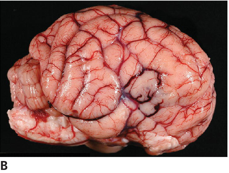 Photo of grade III oligodendroglioma of canine displaying lateral view of the brain with swollen discolored gyri due to the oligodendroglioma infiltration.